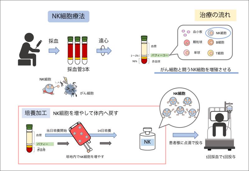 NK細胞療法